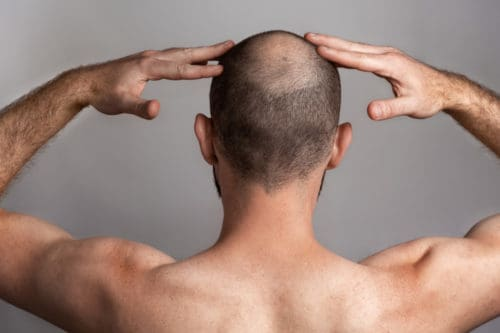 Man showing a developing Bald Spot on the back of his head