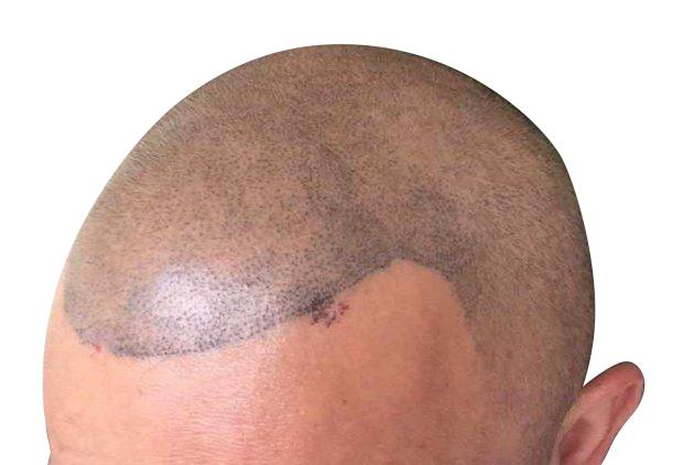 Scalp micropigmentation regrets can come from bad scalp micropigmentation pattern placement.