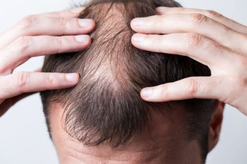 Your hair falling out is a clear sign of balding