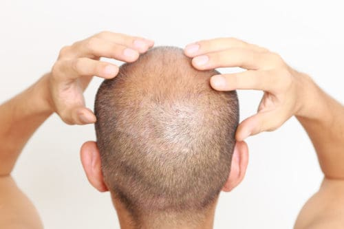 Balding can be attributed to many factors. Scalp micropigmentation can help.