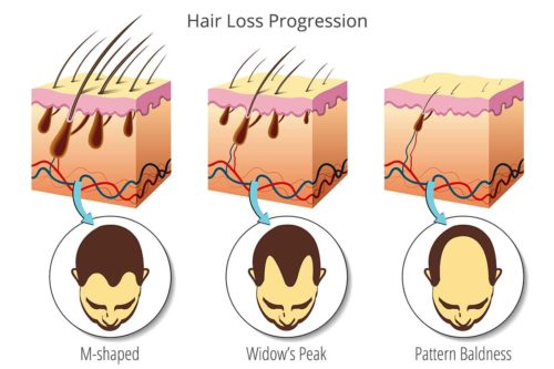 Hair Loss Progression Diagram and Genetics role in balding and hair growth