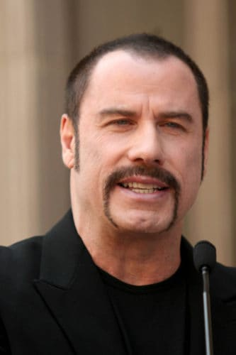 John Travolta's receding hairline