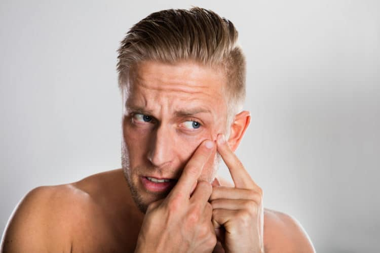 Get Rid of Beard Pimples