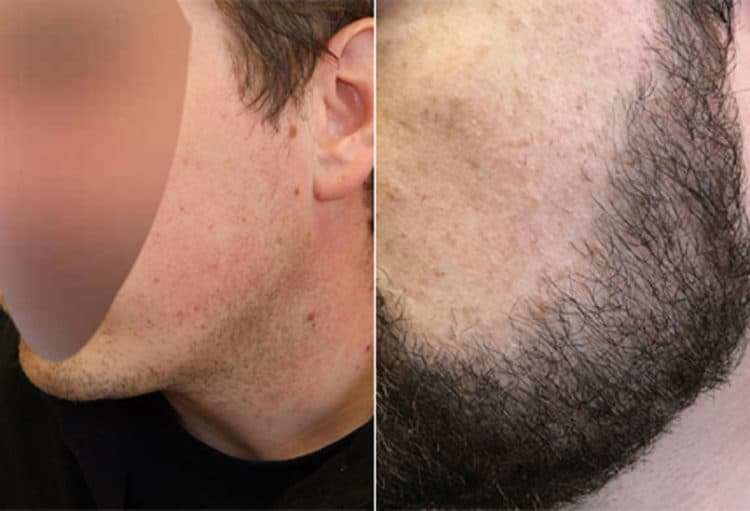 Before After Beard Transplant