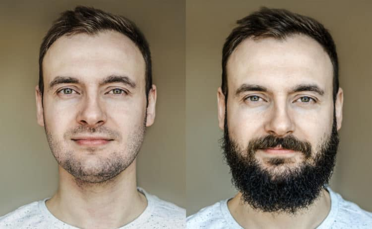 Slow beard growth may be helped with specific growth treatments.