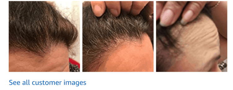 Before and After Briogeo Scalp Revival
