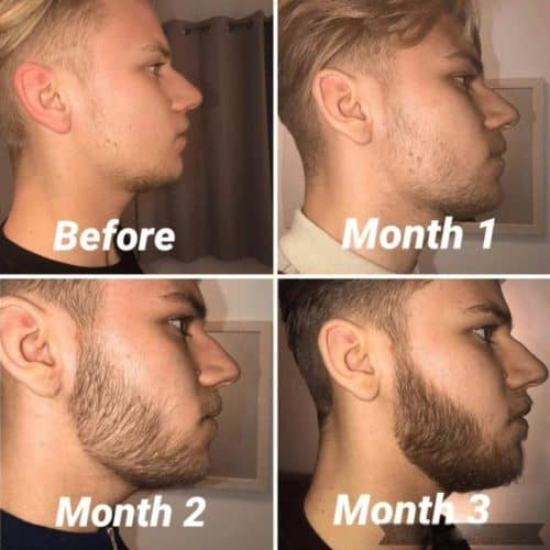 Beard growth results before after derma roller