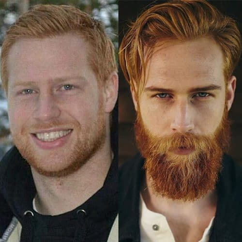 Before After Ginger Beard