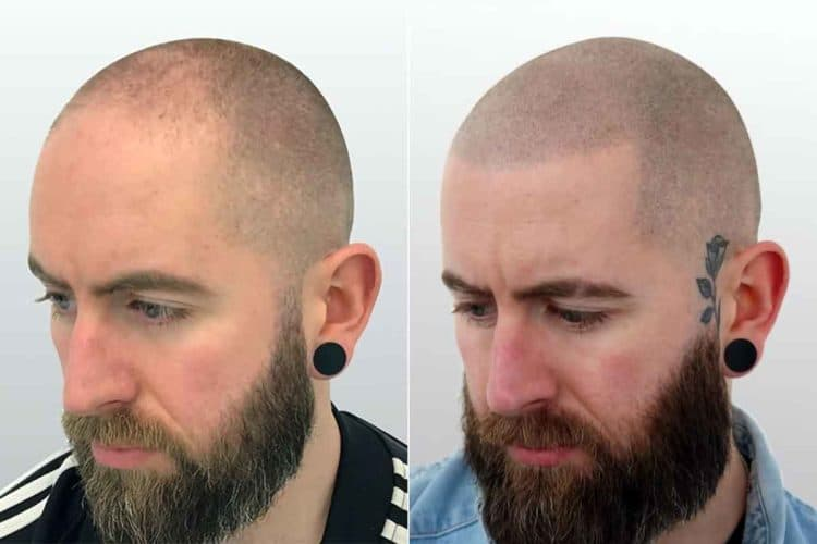 Before after SMP - good results