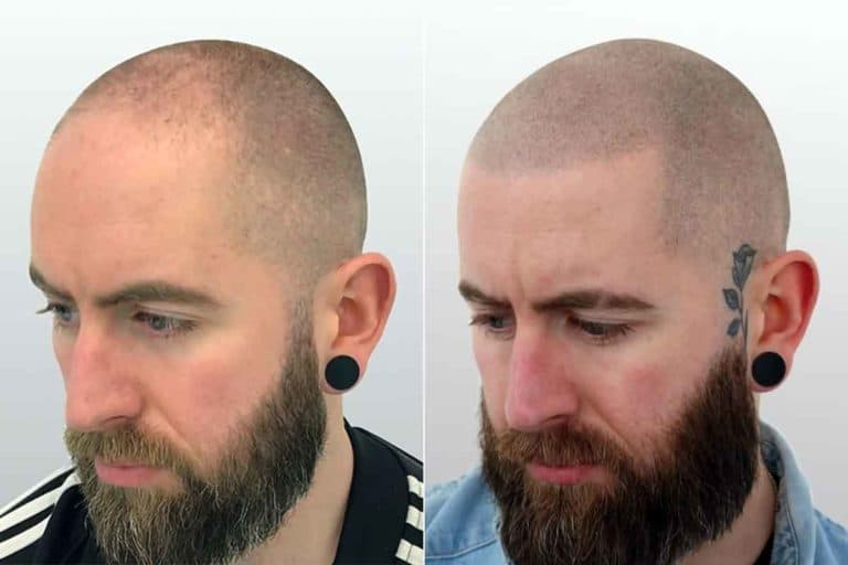 scalp micropigmentation before after