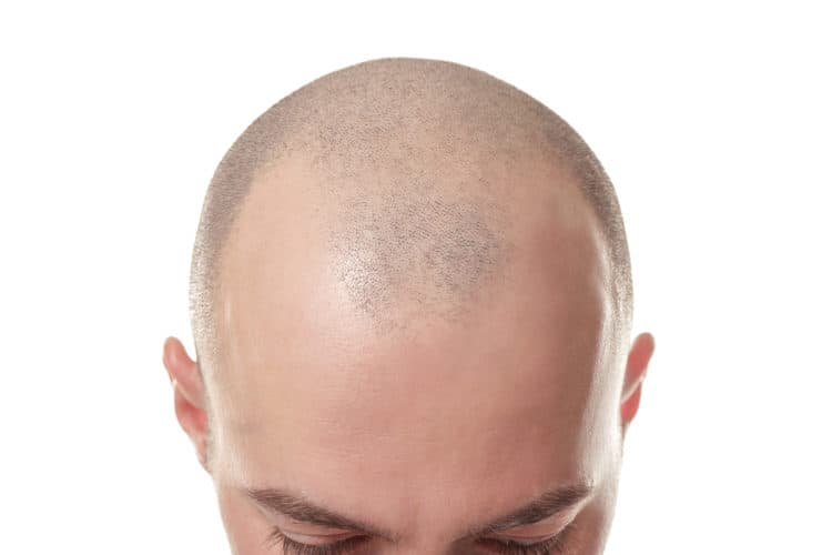 best scalp micropigmentation clinics