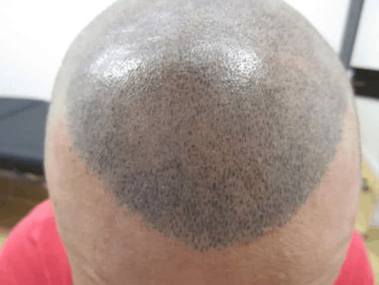 Blue scalp micropigmentation is from inferior ink products.