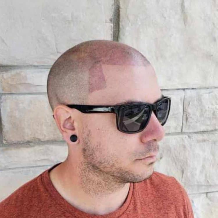 Bad scalp micropigmentation can leave long lasting affects.