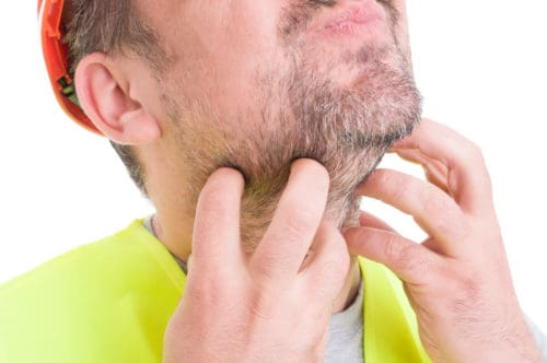 Beard Itch is a common problem