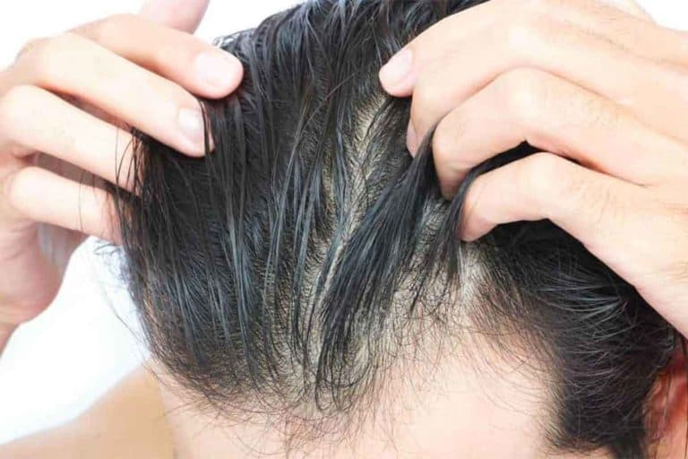DHT - How it Causes Hair Loss, Remedies & Blockers