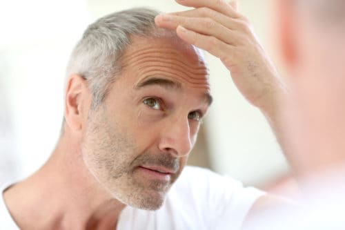 Rogaine may cause side effects like Dry Scalp