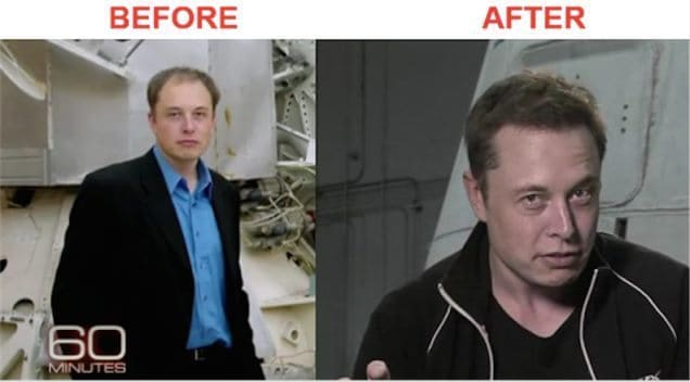Before After Elon Musk Hair Transplant