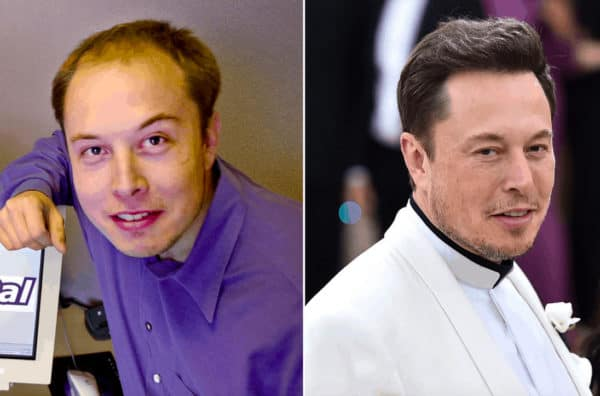 Elon Musk celebrity hair transplant (before and after).