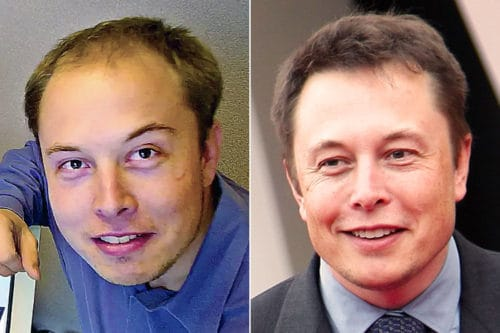 Elon Musk's before and after receding hairline.