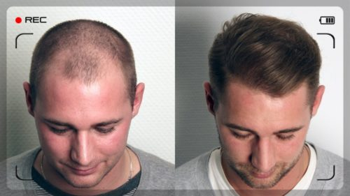 Before After FUE Transplant