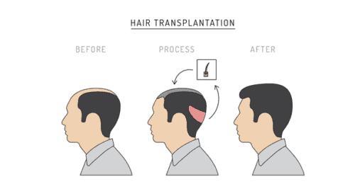 FUT Hair Transplantation Chart