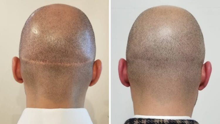 Getting rid of a transplant scar is possible with Scalp Micropigmentation.