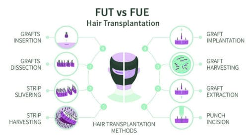 FUT vs FUE Hair Transplant Diagram