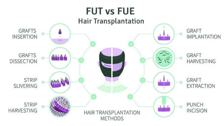 FUT vs FUE hair transplantation