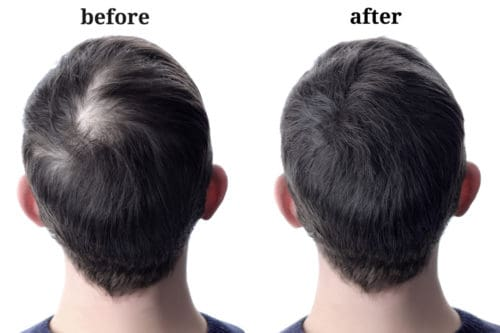 hair fiber before and after using bald spot spray