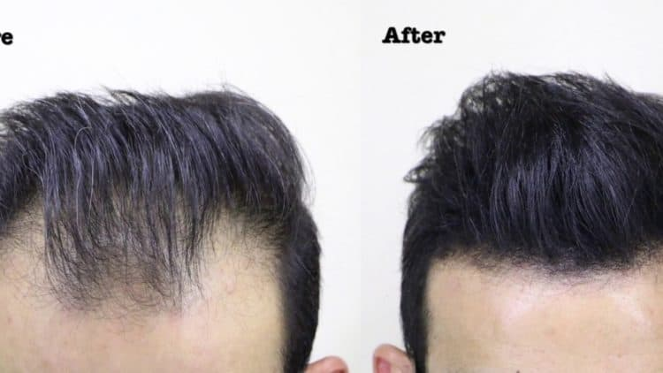 Before After Hair Thickening Spray