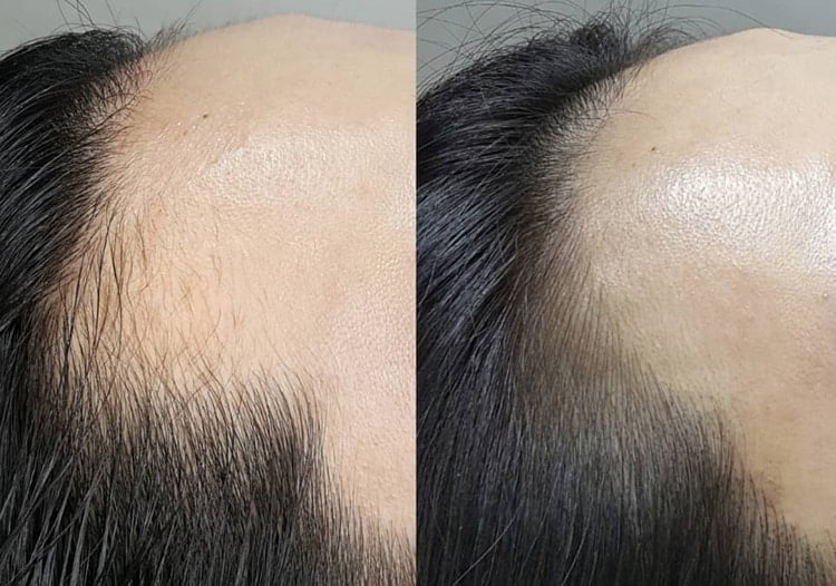 A hairline tattoo can help a receding hairline look more natural.