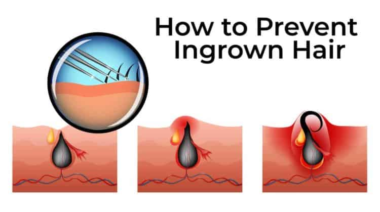 How to Prevent Ingrown Hair