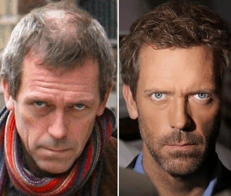 Hugh Laurie celebrity hair transplant (before and after).