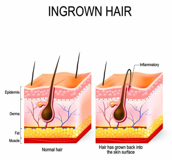 Ingrown Hair Example