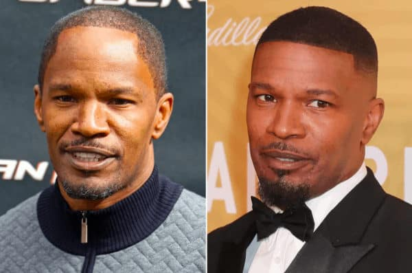 Jamie Foxx celebrity hair transplant (before and after).