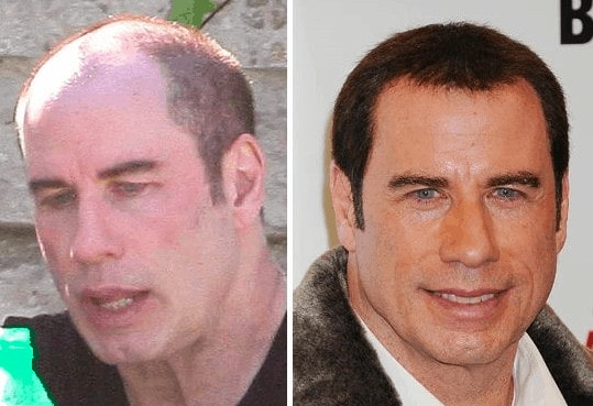 John Travolta celebrity hair transplant (before and after).