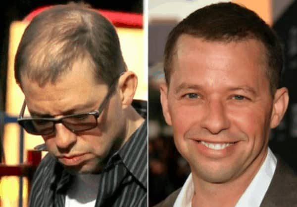 Jon Cryer celebrity hair transplant (before and after).