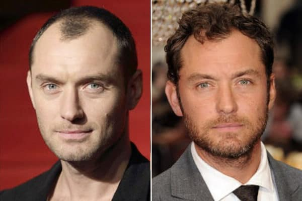 Jude Law celebrity hair transplant (before and after).