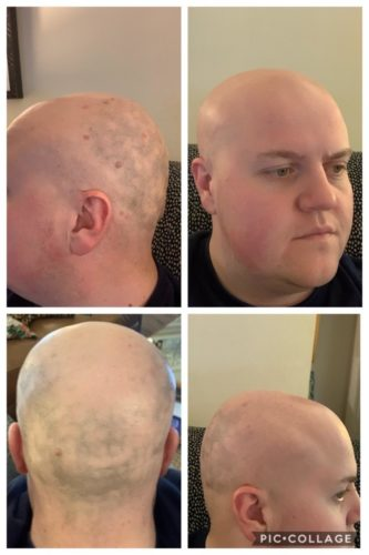 laser head hair removal collage
