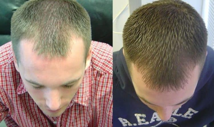 Before After Laser Hair Growth Therapy