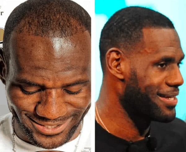 LeBron James celebrity hair transplant (before and after).