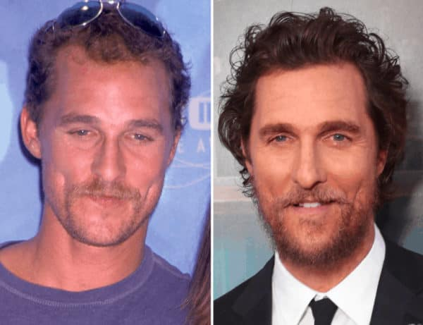 Matthew McConaughey celebrity hair transplant (before and after).