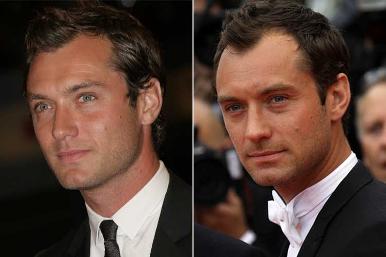 Jude Law's hair loss shows most in his hairline