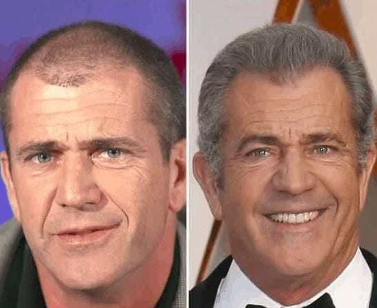 Mel Gibson celebrity hair transplant (before and after).