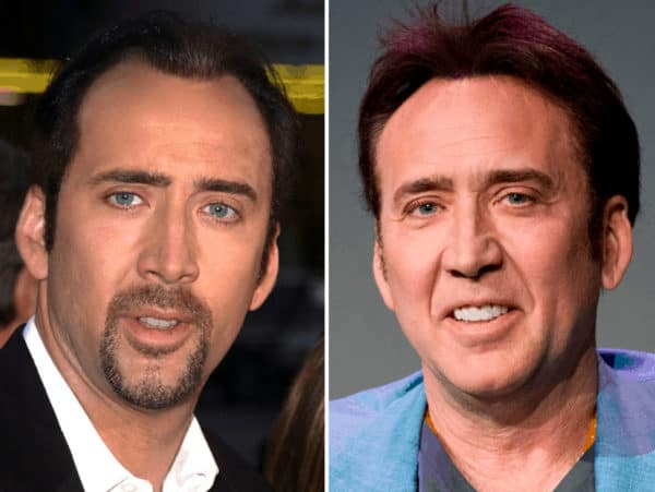 Nicolas Cage celebrity hair transplant (before and after).