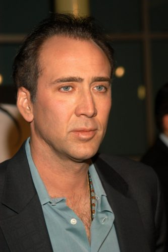 Nicolas Cage Hairline has receded