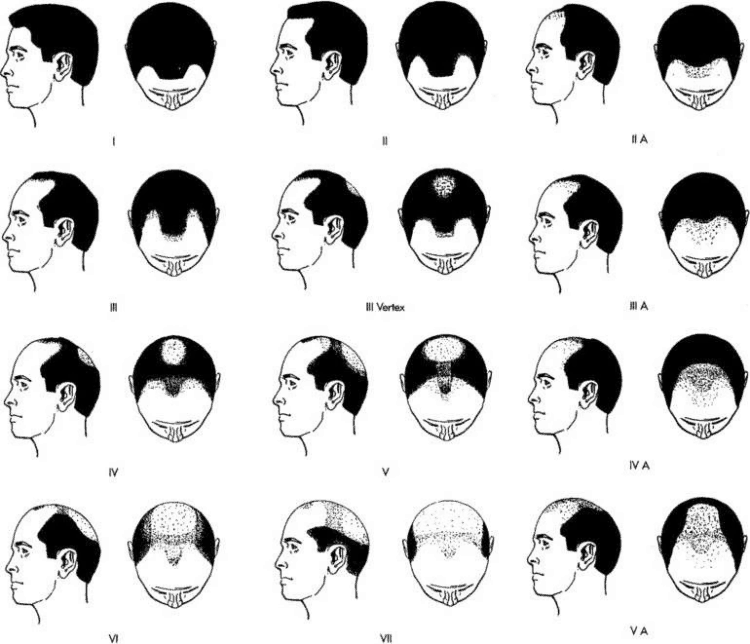7 Stages of hair loss - Norwood scale diagram