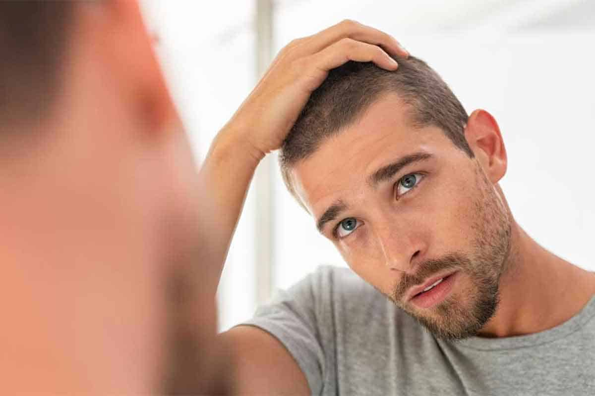 Determine your Stage of Hair Loss on the Norwood Scale