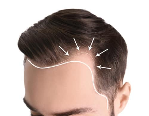 Regrow Your Hairline
