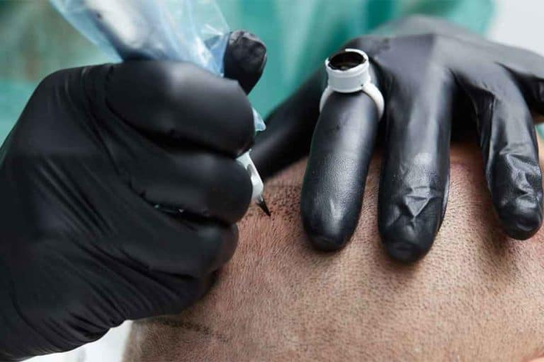 Scalp micropigmentation procedure to restore a full looking hairline